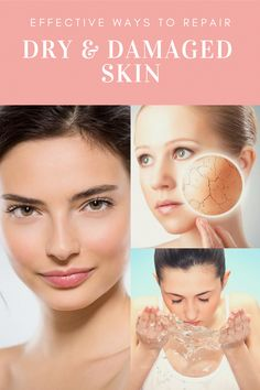 How to Clear away Brown Spots on Face The natural way - Dalia Brown Spots On Hands, Age Spots On Face, Skin Spots, Dark Spots, Brown Skin, Dark Skin, Dark Brown, Veronica, Lotion For Oily Skin