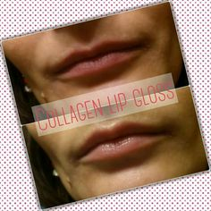 This result is from my really sceptically sister-in-law after 5 minutes using collagen lip gloss WOW :)  ⭐ clinically proven to stimulate collagen production ⭐ this peptide helps you achieve the full, shapely lips you desire ⭐ goodbye undefined lips ⭐ who needs needles?  #naturalfulllips  #SimplyTheBest
