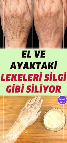 skin Elinizdeki ve Ayağınızdaki Lekelerden Anında Kurtulun! Homemade Skin Care, Diy Skin Care, Homemade Beauty, Home Beauty Tips, Beauty Secrets, Perfumes Versace, Beauty Hacks For Teens, Health Care Reform, Get Rid Of Blackheads