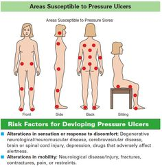 Areas Susceptible to Pressure Ulcers: visual chart and rationale of risks factors for developing pressure ulcers.