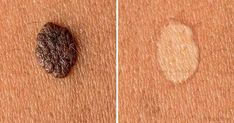 4 Recommended Home Remedies to Get Rid of Skin Tags and Warts