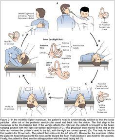 pictures of vertigo exercises | http://www.emedicine.com/emerg/topic57.htm