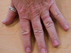 Picture Of Wedding Ring Rash Dermatitis