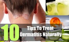 Natural Cure For Psoriasis Types Of Psoriasis, Psoriasis Cream, Eczema Psoriasis, Eczema Pictures, The Cure, Shampoo, Treats, Tips