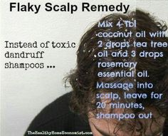 since the only shampoo that ever worked for me was discontinu… - Hair Care Dandruff Natural Dandruff Remedy, Hair Treatments, Natural Remedies, Homeopathic Remedies, Flaky Scalp, Dry Scalp, Itchy Scalp, Itchy Head, Hair