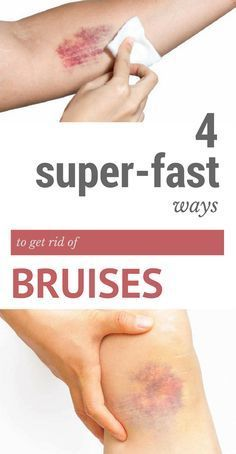 4 Super-Fast Ways to Get Rid of Bruises