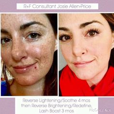 """""""Day ONE of using Rodan and Fields, to now. It feels like a lifetime ago that I started! I figured, I'll support my sweet friend who is selling this, I'm SURE it won't work, I'll just return it within that 60 day period and get my full refund. No loss. Little did I know R+F would change my SKIN. My LASHES. My CONFIDENCE. My SOCIAL LIFE. My BELIEF in myself. My FREEDOM. My BANK ACCOUNT. My SOUL. My whole WORLD. My whole LIFE...Every day I am grateful. Every. Single. Day.❤""""."""