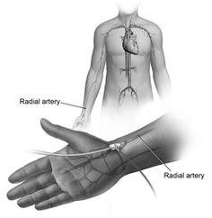 Radial Approach Cardiac Catheterization Procedure   Peter's is now performing angioplasty for patients with clogged heart ...