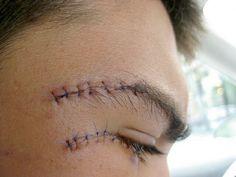 Stitches #1