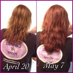 Does Nature Made Biotin  Mcg Work