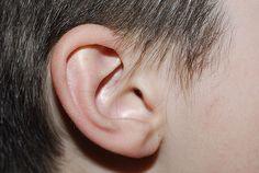 PROJETO ORELHINHA » Mutirão vai realizar 400 cirurgias de correção de orelha de abano em BH Qualquer pessoa acima de 7 anos pode se inscrever para a realização da otoplastia. Subsídio é de 70% do valor do tratamento cirúrgico; custo aproximado do paciente é de R$ 2200 e pode ser parcelado em até doze vezes