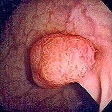 Tips mencegah pembentukan polip di usus besar