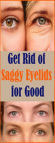 If you are struggling with saggy eyelids, then you must have gone through the frustrating process of applying make-up. The droopy eyelids make you look older, tired, and weary. Saggy Eyes, Droopy Eyelids, Skin Firming Lotion, Tighten Stomach, Extra Skin, Skin Mask, Loose Skin, How To Slim Down, Natural Cures