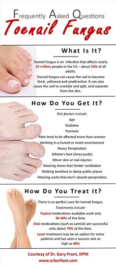 What is toenail fungus?  How do you get it?  How do you treat it? Dr. Gary Prant DPM