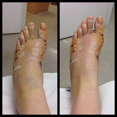 bunion surgery recovery 2014 - directions not included Bunion Exercises, Bunion Remedies, Tailors Bunion, Bunion Surgery, Scammer Pictures, Bunion Shoes, Surgery Recovery, After Surgery, Girl Photography Poses