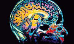 'It's a slightly strange world when a scan of blood flow in the brain is taken as vindication of a subjective mental state.' Photograph: Howard Sochurek/ Corbis