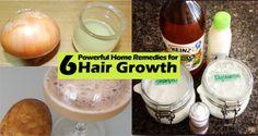 6 Top Remedies for Hair Growth - Remedies for Hair Growth. Try these 6 home remedies to grow your hair very fast.Remedies for Hair Growth Hair Remedies For Growth, Home Remedies For Hair, Hair Growth, Beard Growth, Mild Shampoo, Hair Shampoo, Ayurvedic Herbs, Hair Rinse, Fuller Hair