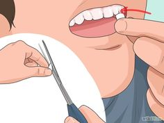 Make Vampire Fangs Step 4