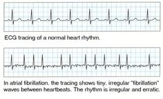 And the AFIB beat goes on ☼ ECG with atrial fibrillation