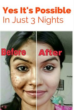 How To Remove The Spots From Your Face In Just 3 Nights