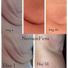 Nerium Firm!  Need I say more?  www.debskincare.theneriumlook.com