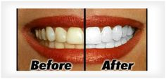 Tanden poetsen met baking soda reinigt je tanden niet alleen maar je krijgt ze ook veel witter hierdoor. En waar kan ik baking soda kopen?