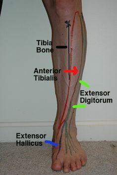 The pes anserine tendons meet on the inner aspect of the upper ...