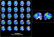 Naming and gesturing spatial relations: Evidence from focal brain-injured individuals