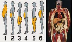 Dimmi dove accumuli grasso e ti dirò qual è il problema e da cosa dipende. Non sottovalutiamo mai nulla: il nostro corpo ci manda segnali anche in così!