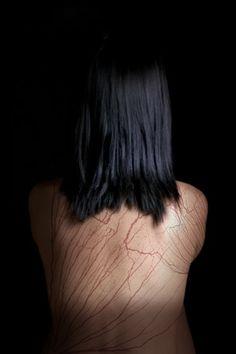 Mia Price's lightning scars (aka Lichtenberg figures)