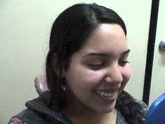Porcelain Veneers Los Angeles Ca Dentist | 323-771-7254 Porcelain Veneers patient testimonial. Patient loves her veneers and her new smile!