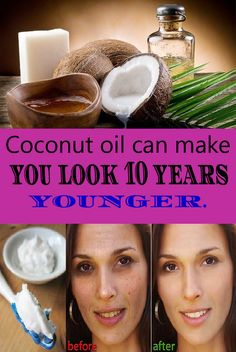 Coconut oil is definitely the most popular natural oil these days, and besides its multiple health benefits, it also has a wide range of uses, so it definitely deserves its fame. When it comes to h…