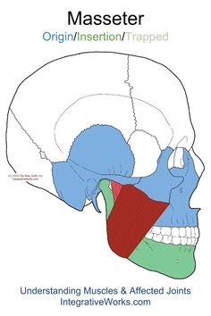 Understanding Trigger Points - Pain in lower teeth (molars) and jaw
