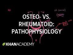 Osteoarthritis vs rheumatoid arthritis pathophysiology - YouTube Osteoarthritis Vs Rheumatoid Arthritis, Rheumatoid Arthritis Symptoms, Sjorgens Syndrome, Hip Replacement Recovery, Body Tissues, Pharmacology, Medicine, Nclex Rn, Youtube