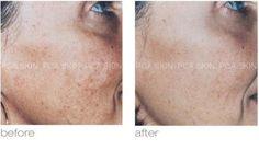 Treatment for Sun-Induced Hyperpigmentation: 1 PCA Peel