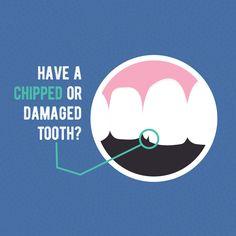 ¿Tienes dientes despostillados, rotos o faltantes? Nuestras especialistas tienen la experiencia para regresar tus dientes a su estado natural: ¡sanos y radiantes!