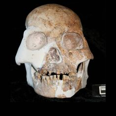 Mysterious fossils of what may be a previously unknown type of human have been uncovered in caves in China, ones that possess a highly unusual mix of bygone and modern human features, scientists reveal.