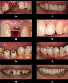 Implant Dentistry | Dental Teeth Implants | Tooth Implant Sydney