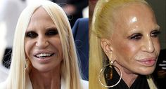 20 Celebrity Before-And-After Plastic Surgery Disasters – Page 13 Celebrity Plastic Surgery, Celebrities Then And Now, Donatella Versace, Celebrity Gossip, Face And Body, Things To Come, Hoop Earrings, Cosmetics, Lifestyle