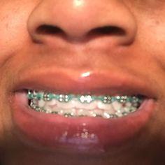 Cute Braces Colors, Cute Girls With Braces, Dental Braces, Teeth Braces, Gold Braces, Braces And Glasses, Braces Tips, Getting Braces, Brace Face