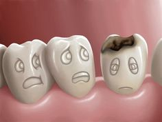 Home remedies for tooth decay and cavities. Treat tooth decay and cavities. Tooth decay and cavities treatment. Top 10 ways to cure tooth decay and cavities Dental Health, Dental Care, Oral Health, Health Tips, Health Care, Heal A Cavity Naturally, Home Remedies For Cavities, Cure Tooth Decay, Tooth Decay Symptoms