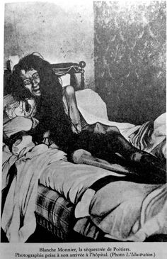 In 1901 a woman in Poiters, France was found having been confined to her room for 24 years by her mother.