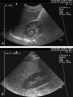 NAFLD: A liver ultrasound examination is useful for confirming steatosis. Fatty infiltration of the liver produces a diffuse increase in echogenicity and vascular blurring Liver Disease Treatment, Liver Detox Symptoms, Fatty Liver Remedies, Liver Recipes, Cleanse Recipes, Liver Detoxification, Liver Detox Cleanse, Liver Failure, Cleveland Clinic