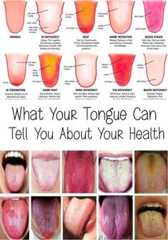 What Your Tongue Can Tell You About Your Health