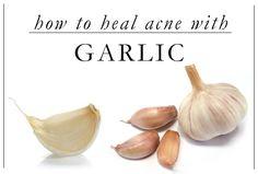 Healing Acne with Garlic