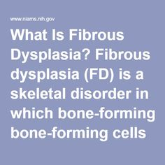 What Is Fibrous Dysplasia? Fibrous dysplasia (FD) is a skeletal disorder in which bone-forming cells fail to mature and produce too much fibrous, or connective, tissue. Areas of healthy bone are replaced with this fibrous tissue. The replacement of normal bone in fibrous dysplasia can lead to pain, misshapen bones, and fracture, especially when it occurs in the long bones (arms and legs). When it occurs in the skull, there can also be a replacement of the normal bone with fibrous tissue…