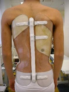 3 Types Of Scoliosis | Innovative scoliosis treatment: A back brace that can measure how long it is worn for