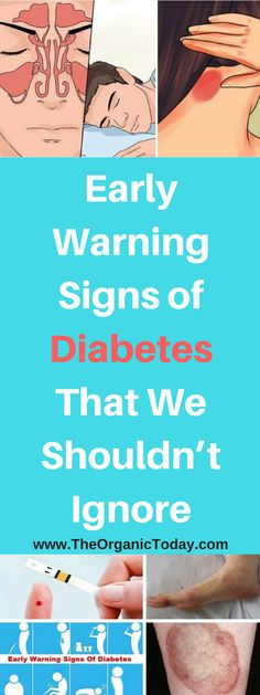 Early Warning Signs of Diabetes That We Shouldn't Ignore