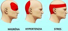 Ako sa zbaviť bolesti hlavy za 5 minút bez tabletiek - Dobré rady a nápady Healthy Detox, Healthy Diet Plans, Healthy Recipes, Natural Oils For Skin, Health 2020, Pimples Remedies, Natural Headache Remedies, Headache Relief, Weight Loss Diet Plan