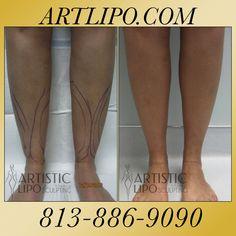 44 Cankles, Ankles, Calves  The Best Liposuction  Expert Dr